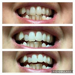 Bright Smiles by Amy, Peachtree Pkwy, 106, #303, Byron, 31008