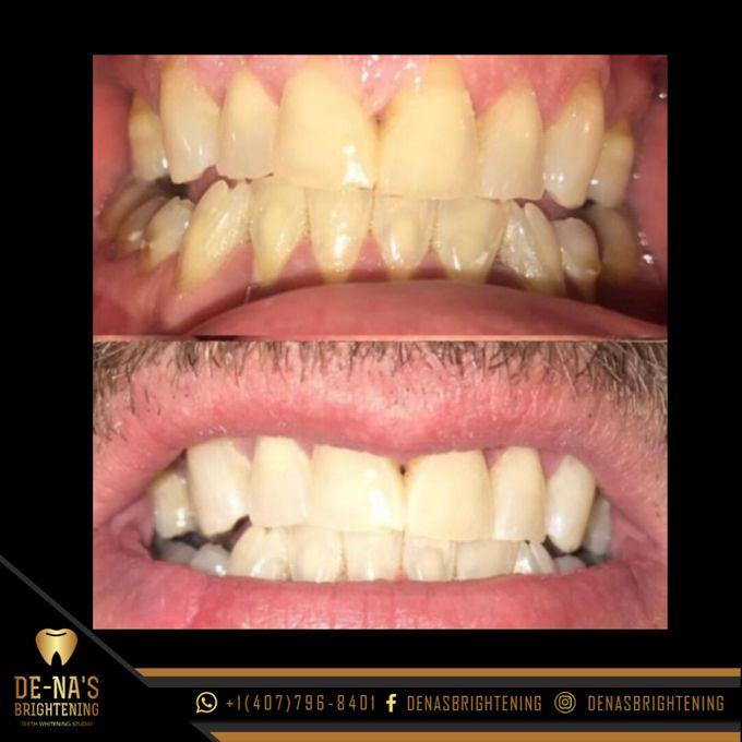De-Na's Brightening Teeth Whitening
