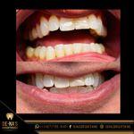 De-Na's Brightening Teeth Whitening - inspiration
