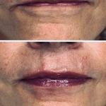 Revamped & Rejuvenated Lashes & Dermal Filler