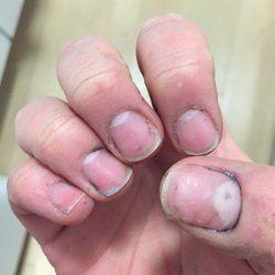 Beyond Nails