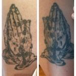 Ray Of Light Laser Tattoo Removal - inspiration