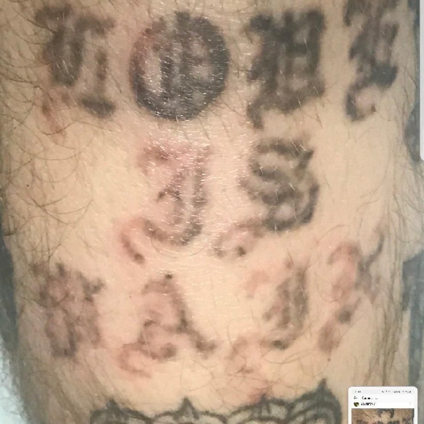 Other - Ray Of Light Laser Tattoo Removal