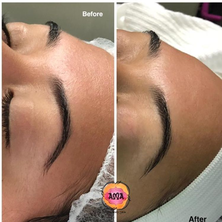 Dual Exfoliation Results Skin transformation from a texturized forehead to a  soft, moistured, healthy, free fine lines area.