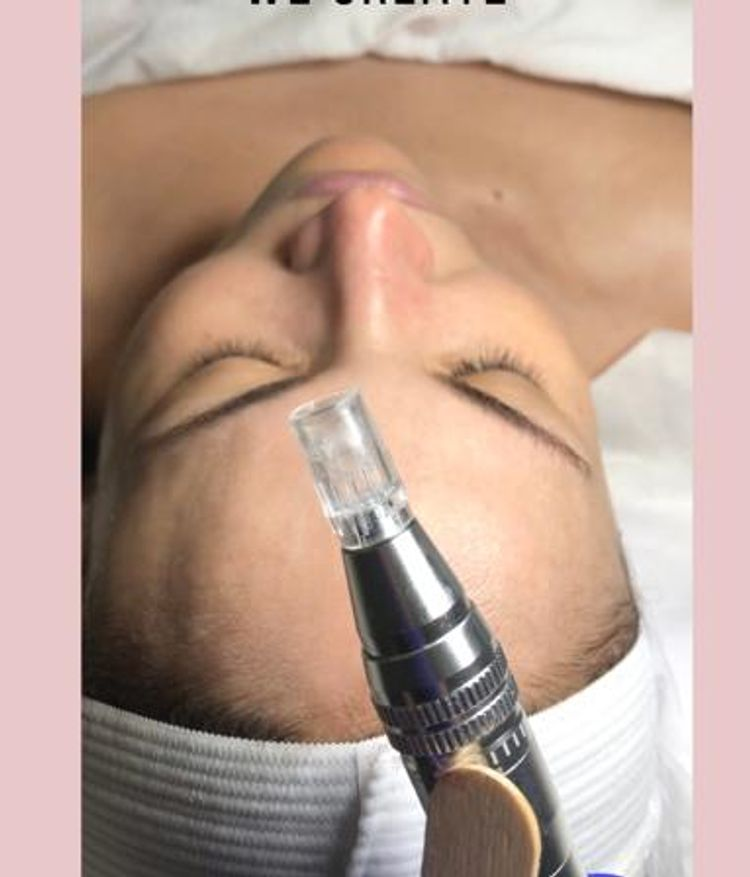 Collagen Induction Therapy 💥Improves skin tone and hyperpigmentation 💥Diminish the apperance of fine lines 💥Balance and restore a healthy glow skin  💥Improves skin acne scars Call 4 FREE Consultation