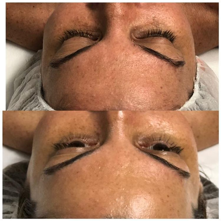 Dermaplaning Facial will provide radiance, smoothness  and diminish of hyperpigmentation in your skin. Immediate increase of products absortionthe glowiness will prove it. Book a FREE consultation now