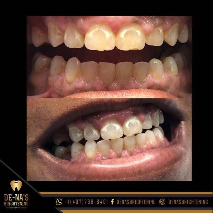 Other - De-Na's Brightening Teeth Whitening