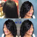 Infinity & Beyond Hair Restoration