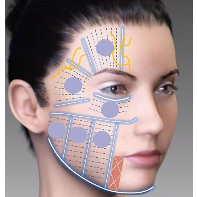 Benefits facial hifu for face lifting.  Focused ultrasound cannot lift the face and neck like a surgical facelift. A comprehensive lower face and neck lift accomplishes tightening loose facial neck mu